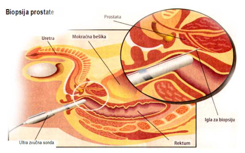Biopsija prostate